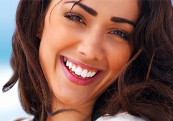Teeth Whitening Marbella